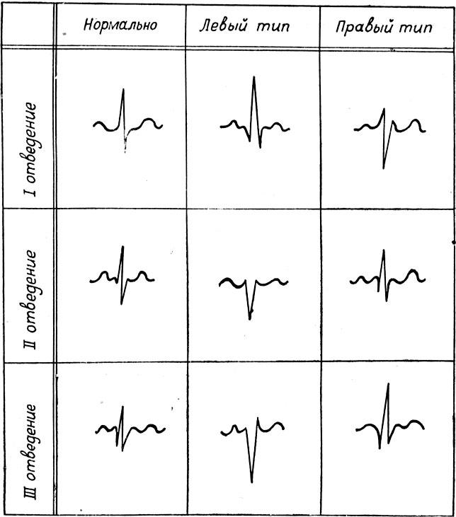 Схема электрокардиограммы при