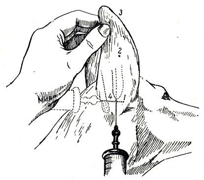 Схема инъекции при