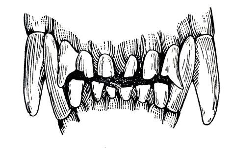 Зубы в возрасте уход